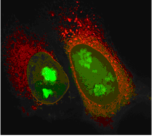 60x imaging of HeLa cells transiently transfected with BacMam GFP-Histone H3 (green) and Organelle Lights ER-OFP (red).