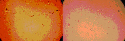 Representative images of H-mesothelioma Cells Dispensed into 1536-well plates using a MicroFlo Select.