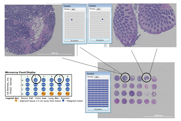 A 24 core tissue microarray imaged on Cytation 5 at 4x using montage and stitching options available in Gen5 software.