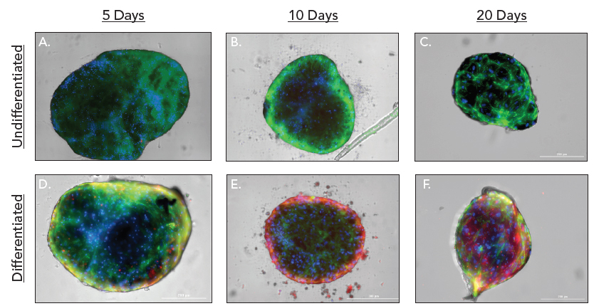 3D cultured hMSC spheroid chondrocyte differentiation over time.