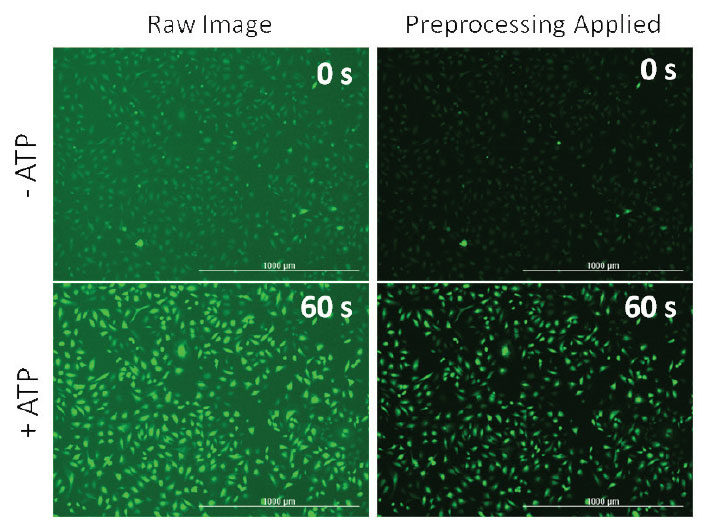 Preprocessing of images reduces background fluorescence.