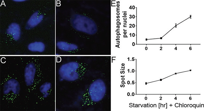 Autophagy spot count increases with longer serum starvation