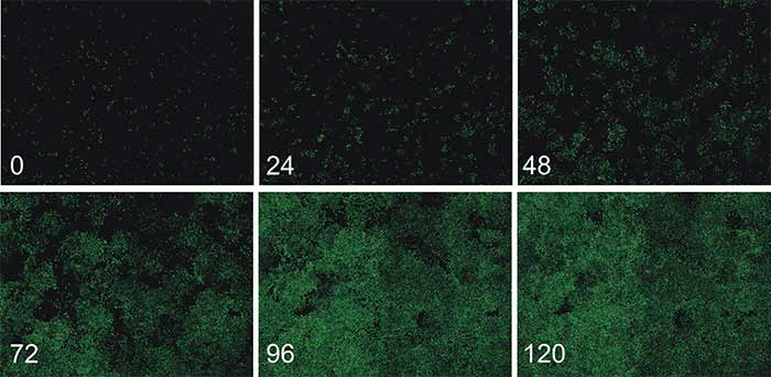 Montage images of HCT116-GFP cells in culture over 5 days