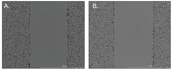 Figure 2. Images captured from a 24-well plate immediately following wound creation with AutoScratch using the high contrast brightfield imaging channel and a 4x objective.