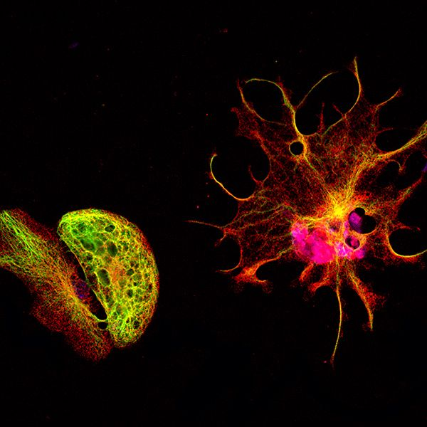 MAP2 (red) and GFAP (green) staining on mesenchymal stem cells in vitro neural differentiation induced; magnification 40X.