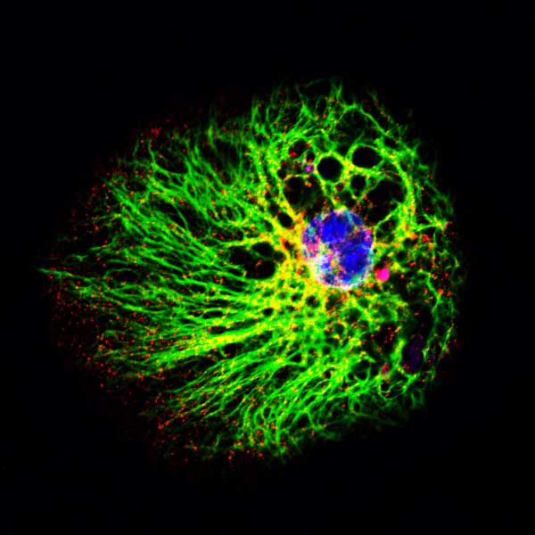 Neural stem Cell from Mice