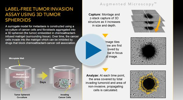 •	Label-Free Tumor Invasion Assay Using 3D Tumor Spheroids